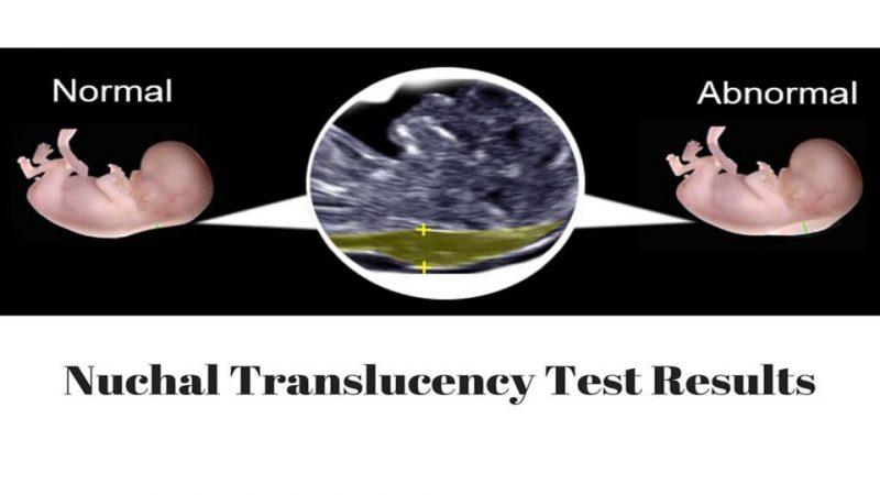 Nuchal translucency ස්කෑන් එකක වැදගත්කම